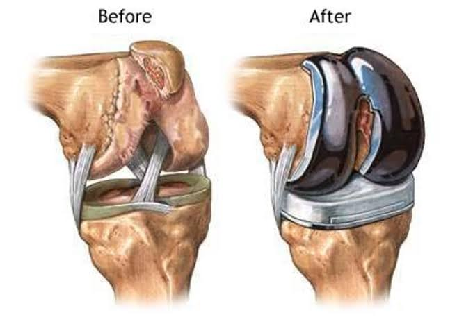 For Knee Replacement Surgery, consult with Dr Vasudeva Juvvadi, the Best Knee Replacement Surgeon in Hyderabad.