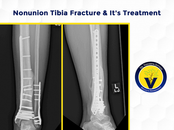 Nonunion tibia fracture treatment by Dr Vasudeva Juvvadi, one of the best Orthopedic surgeon in Hyderabad