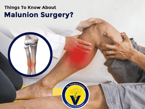 Consult Dr Vasudeva Juvvadi, Best orthopaedic Surgeon For Malunion Fracture Surgery In Hyderabad