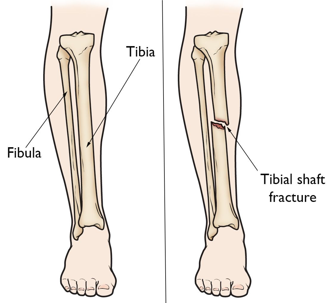 Book an Appointment with Dr Vasudeva Juvvadi, Best Tibia Fracture Doctor in Hyderabad