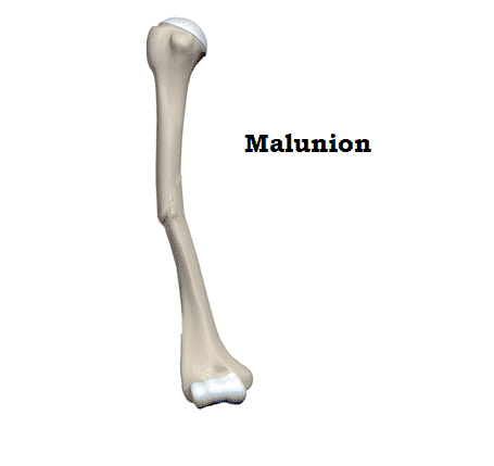 Malunion treatment by Dr Vasudeva Juvvadi, Top orthopaedic surgeon in Hyderabad