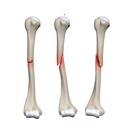 Contact Dr Vasu Juvvadi, Orthopedic Surgeon in Hyderabad for Nonunion tibia fractures
